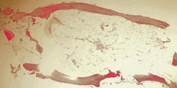 fat cells in poorly mineralized bone