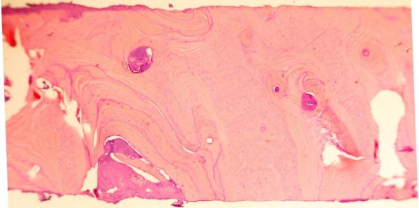 healthy regenerated bone tissue